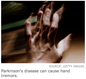 The degreaser, TCE, found to cause Parkinson's Disease.